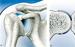 Artrosis hombro