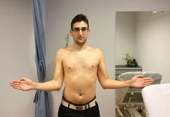 paciente-latarjet - Alai Sports Medicine Clinic