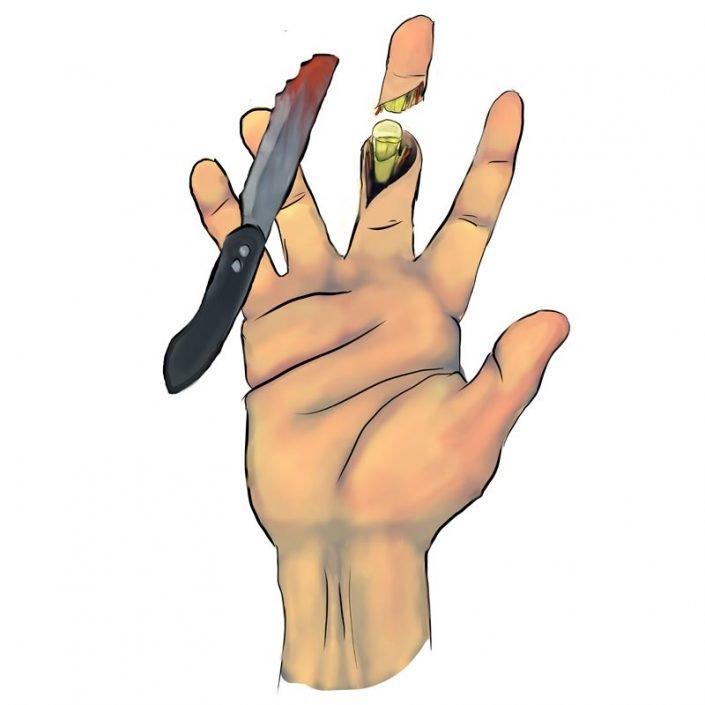 Alai Sports Medicine Clinic - Especialidad de mano - Amputacion