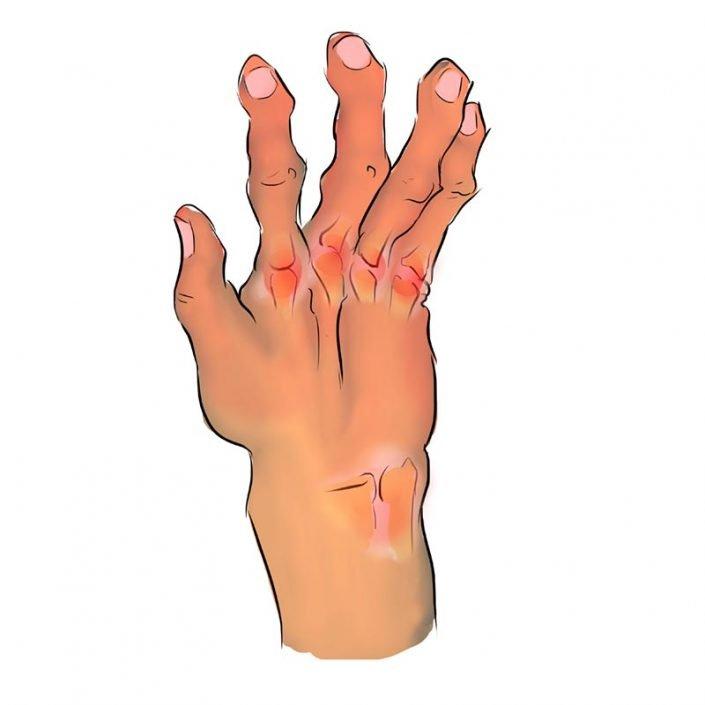 Alai Sports Medicine Clinic - Especialidad de mano - Artritis-Reumatoide