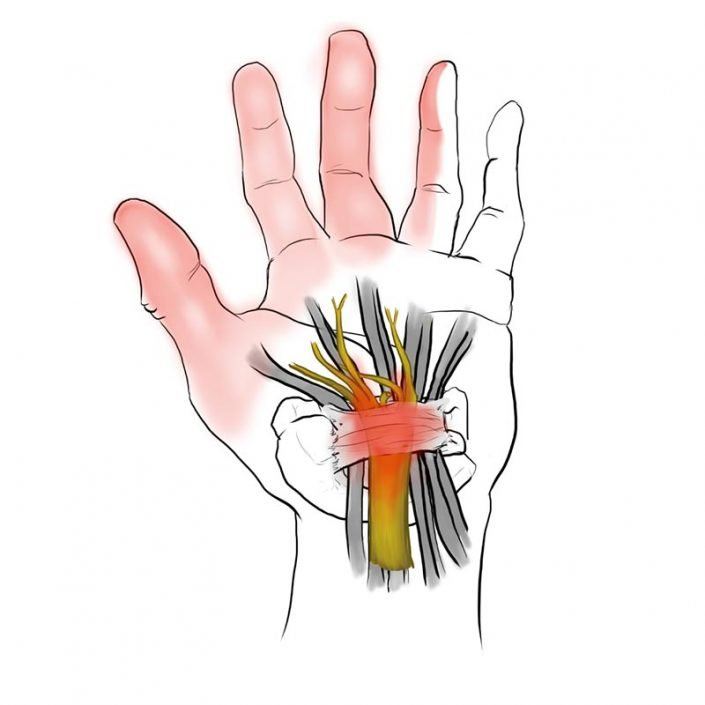 Alai Sports Medicine Clinic- Especialidad de mano - Canal-del-Carpo