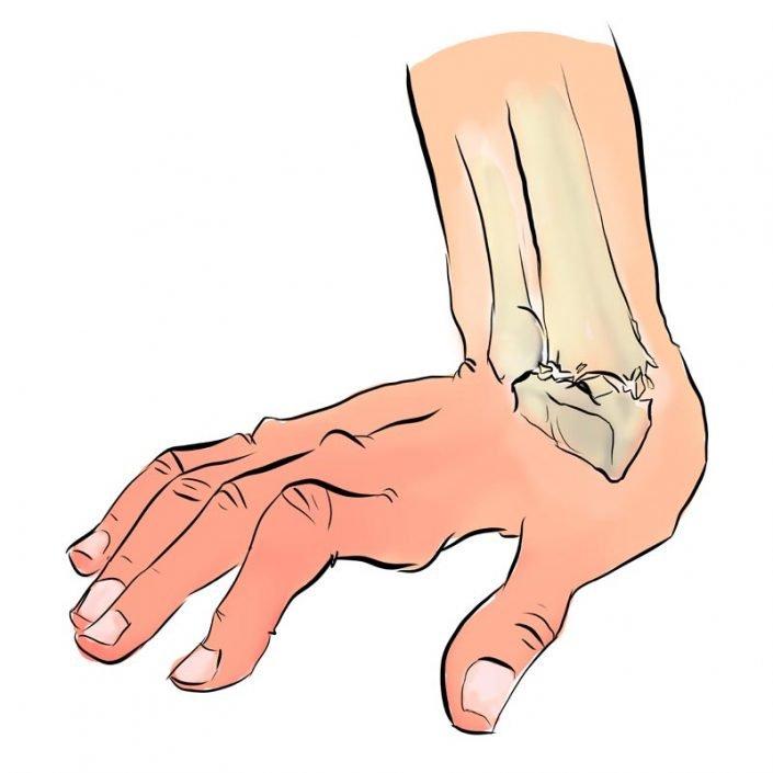 Alai Sports Medicine Clinic - Especialidad de mano - fractura de muñeca