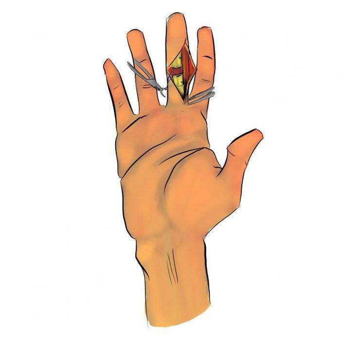 Alai Sports Medicine Clinic - Especialidad de mano - reparación tendinosa