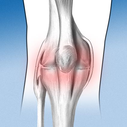 Especialidad rodilla - artrosis - Alai Sports Medicine Clinic