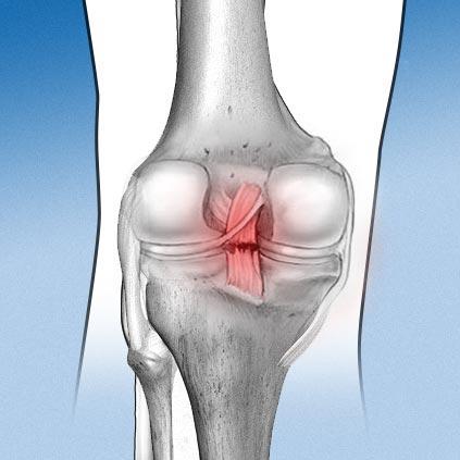 cirugía de rodilla en ALAI SMC / cruzados