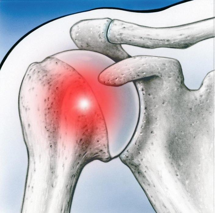 Especialidad hombro - hombrocongelado - Alai Sports Medicine Clinic