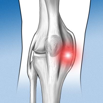 Especialidad rodilla - meñisco - Alai Sports Medicine Clinic